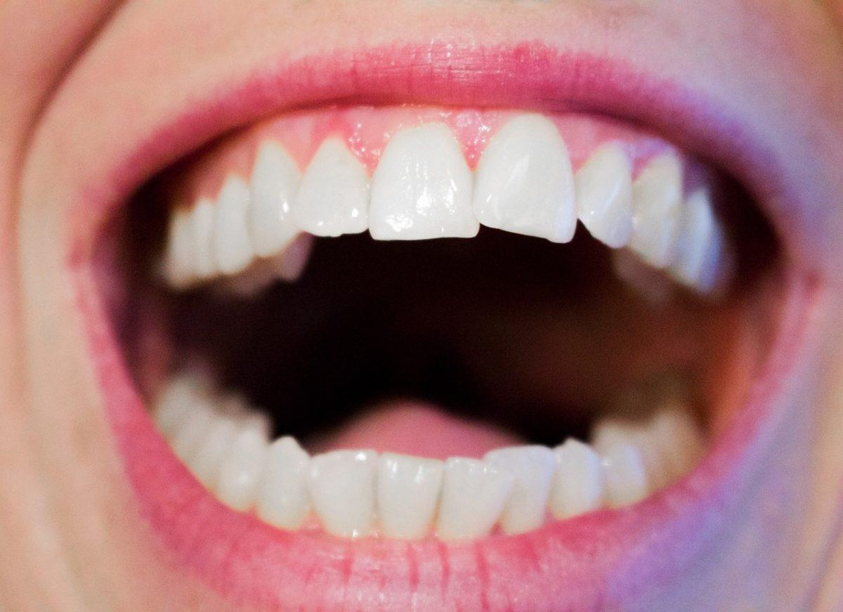 Dzisiejsza technologia wykorzystywana w salonach stomatologii estetycznej być może sprawić, że odbierzemy śliczny uśmiech.